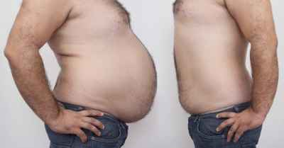 fat-and-slim-bellies