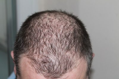 root_hair_loss_greenmedinfo