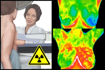 thermogram-main