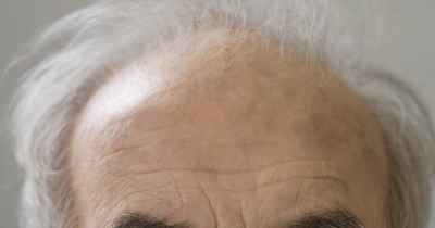 Close up of senior Hispanic manÕs balding head