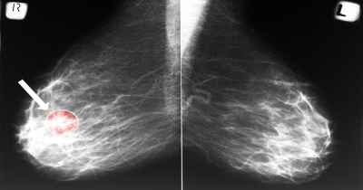 Lower-Your-Risk-of-Breast-Cancer